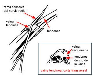 operación para la tendinitis